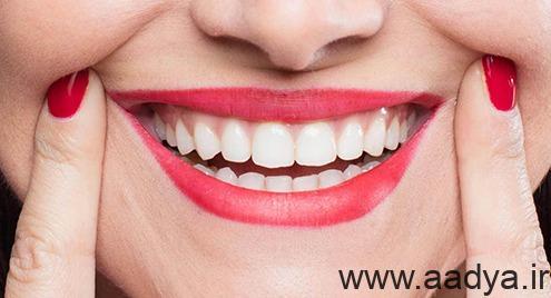 botox-for-gingival-smile2